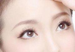 切开双眼皮术后需要注意哪些东西?
